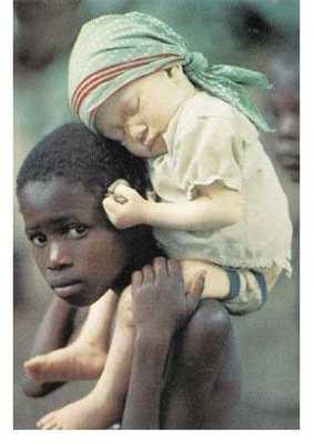 Albino-Human-African-B