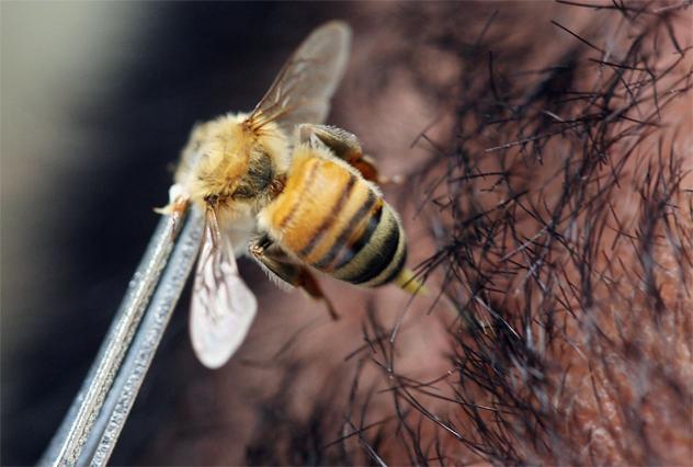 Bee Acupunture Practiced In Indonesia