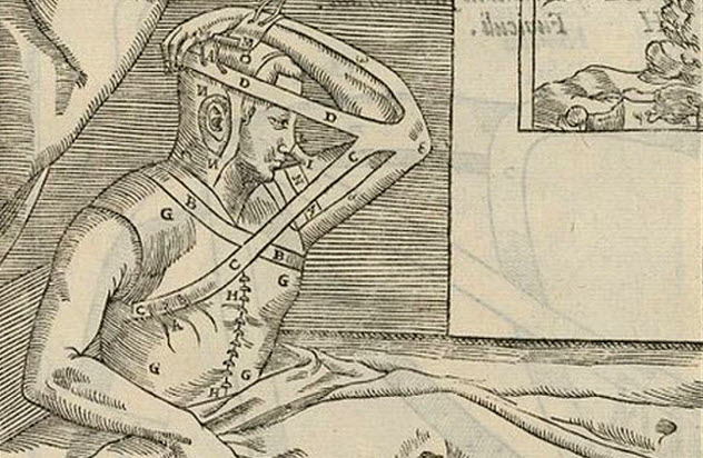 10b-early-italian-method-rhinoplasty