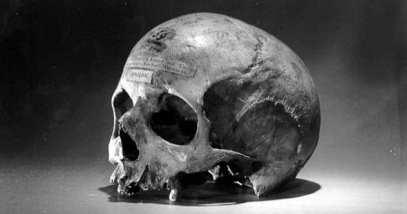 feature-alexander-pearce-skull