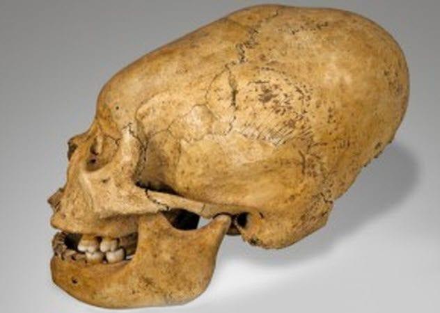 3a-deforned-inca-skull