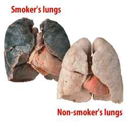 Smoke is harmful to the lungs