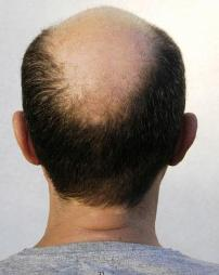 Baldness Is Linked To Heart Disease: Study Finds