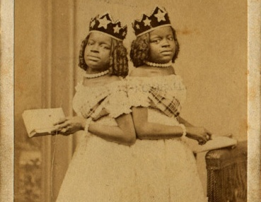 Two-Headed Girl: The little known Story About Millie and Christine McKoy