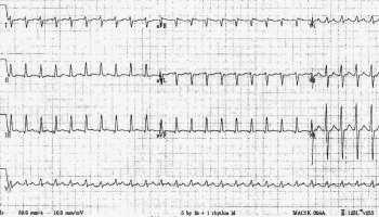 ECG Rate Interpretation • LITFL Medical Blog • ECG Library