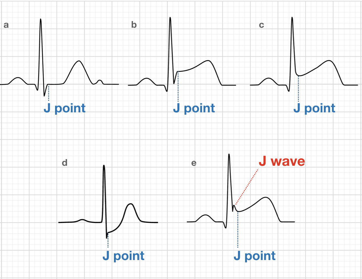 Ecg Exam Template Litfl Medical Blog Ecg Library Basics