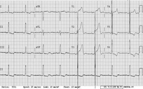 ECG LVH ST elevation not MI