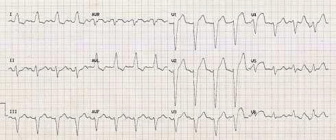 Left Bundle Branch Block (LBBB) • LITFL • ECG Library Diagnosis