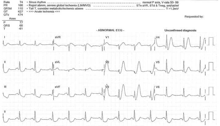 ECG de Winter waves proximal LAD occlusion