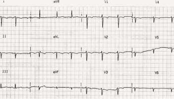 Dextrocardia • LITFL • ECG Library Diagnosis