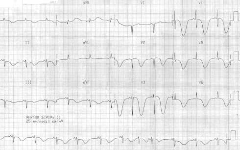 TWI Raised intracranial pressure (ICP) SAH