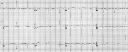 Wellens Syndrome (Type A Pattern) 2