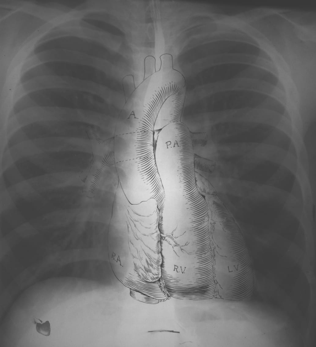 Normal Chest X Ray Litfl Medical Blog Labelled Radiology