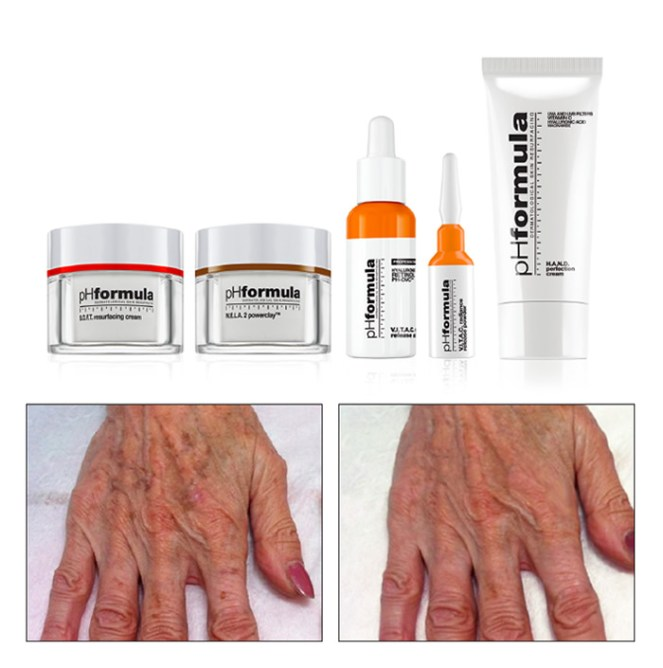 treatment_HANDS