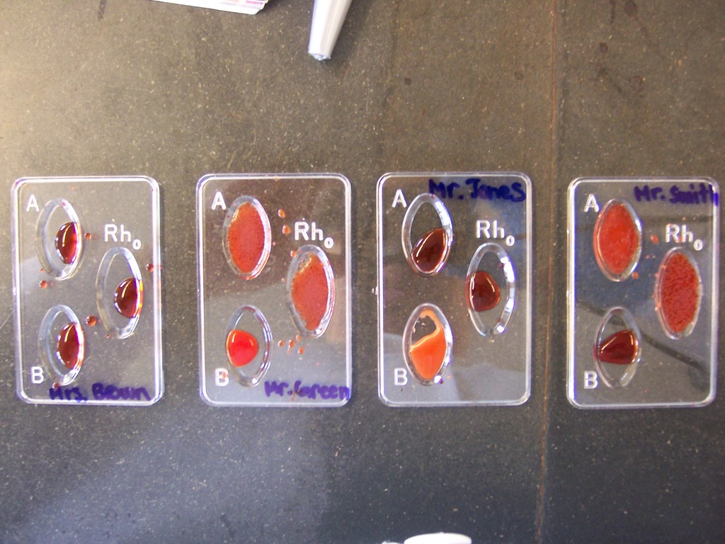Simulated Abo Amp Rh Blood Typing Done 10 30 07