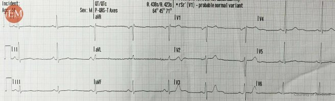 738.1 - Prior ECG before 738.2 - STEMI