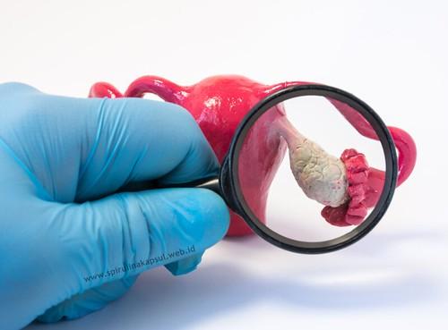 Obat Penghancur Kista Ovarium