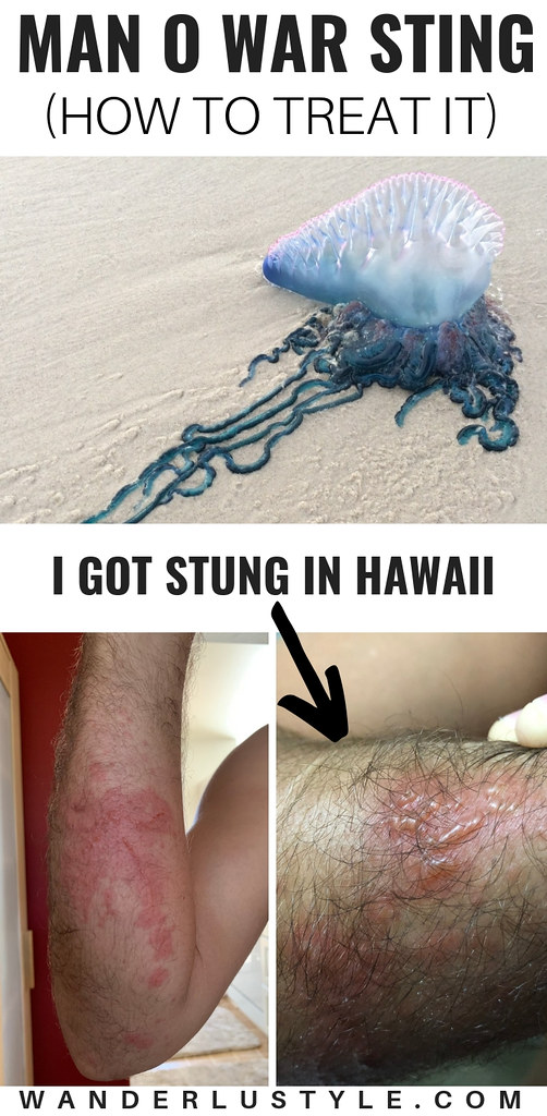 How To Treat a Man O War Sting - Man O War Hawaii, Man O War, Man O War Sting, Man O War Treatment