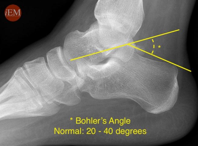 853 - bohler angle - calcaneus