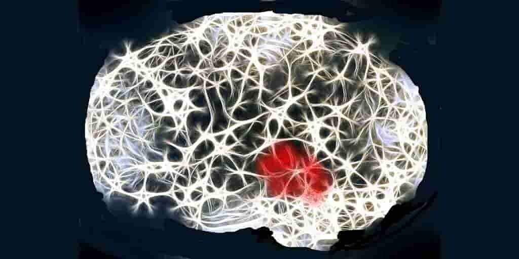 un-facteur-permettant-de-retarder-apparition-de-la-maladie-Alzheimer