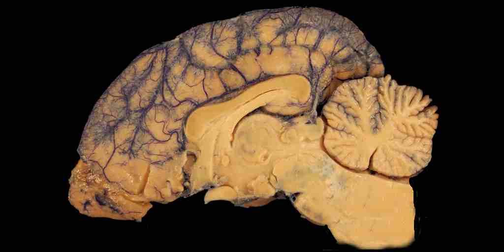 nouveau-médicament-contre-Alzheimer