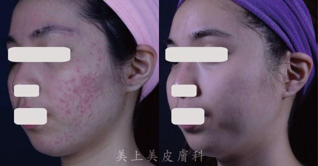 痘疤是永久性的疤痕,所以痘疤的黃金治療期很重要,早期的痘疤治療更重要,越早治療,越不容易變成凹痘疤!