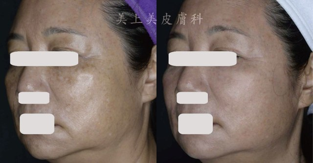 皮膚日常保養、皮膚治療的療程多久會看到效果?這些問題跟角質更新的週期很有關係,適當的去角質,有助於幫助皮膚。