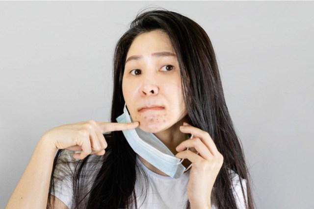 acne skin care
