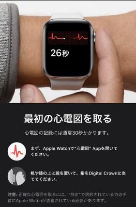 electrocardiogram on Apple Watch