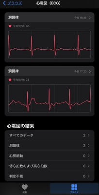 ECG with Apple Watch