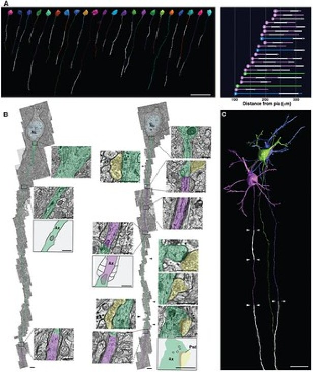 Images myéline sur neurones pyramidaux - article scientifique.