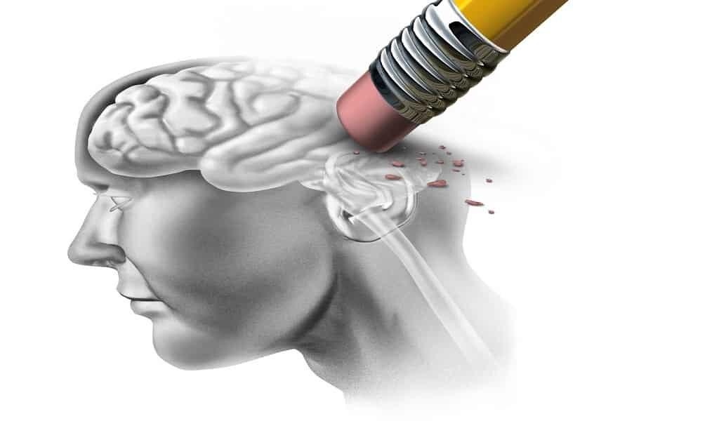 rajeunir-le-cerveau-de-la-maladie-Alzheimer