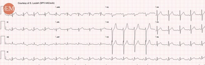 839 - diffuse ST elevation - pericarditis?