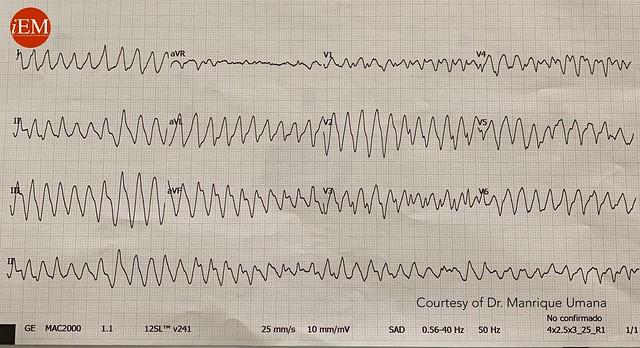 842 - Wide QRS complex tachycardia
