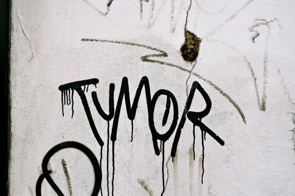 Tumor Bleeds