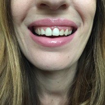 chantal boyajian smile brilliant professional at home teeth whitening kit