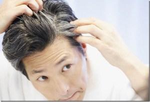premature-greying-of-hair-ayurvedic-home-remedy