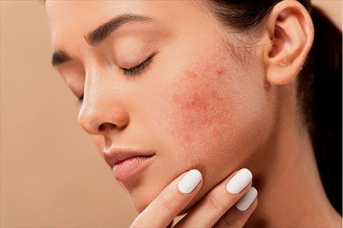 acne-5561750_1920_R