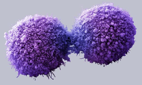 がん細胞5