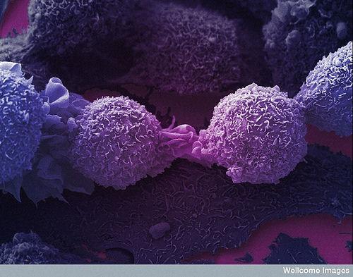 がん細胞7