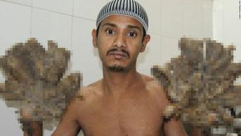 001-tree-man-bdngladesh