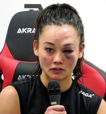 野沢直子の娘・真珠顔面崩壊でRIZIN初黒星…右ヒジ手術から1年ぶり復帰も