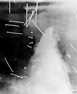 スマトラサイX線写真