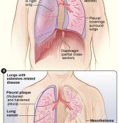 Asbestos effect