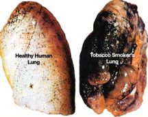 Healthy Lung and smoker lung
