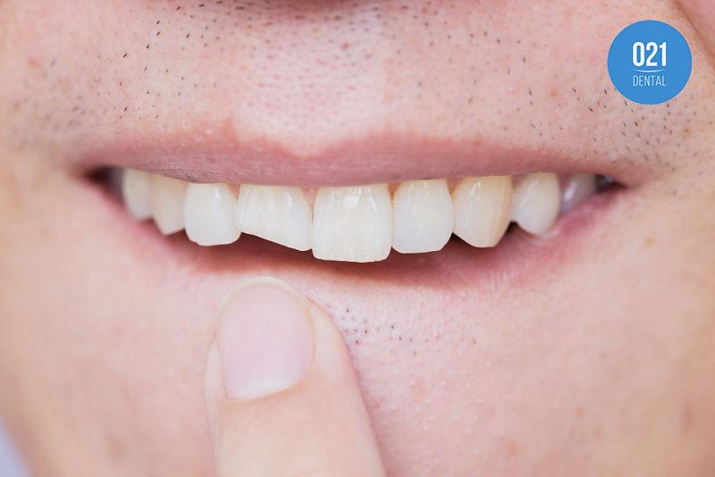Dentes quebrando: Qual é a prevenção?