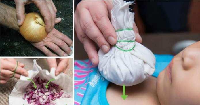 Ceapa este un remediu natural pentru multe boli. Iată cum o puteți folosi!