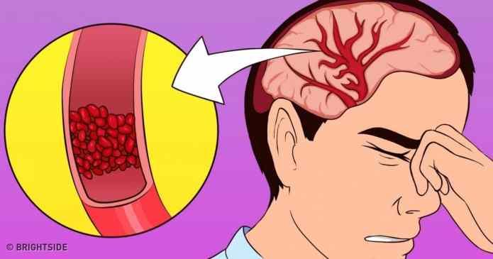 Acestea sunt vitaminele de care aveti nevoie dacă aveți deseori dureri de cap, lipsa de energie și insomnii