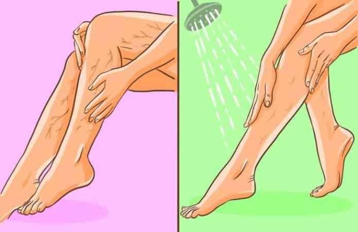 ajuta la prevenirea venelor păianjen