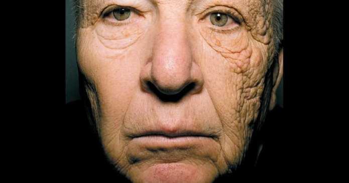 Un bărbat de 69 de ani și-a distrus partea stângă a feței fiind șofer de camion timp de 28 de ani